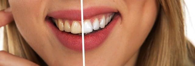 Prix blanchiment dentaire